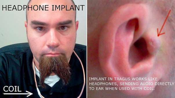 http://metalinjection.s3.amazonaws.com/wp-content/uploads/2013/07/Surgically-Implanted-Headphones.jpg